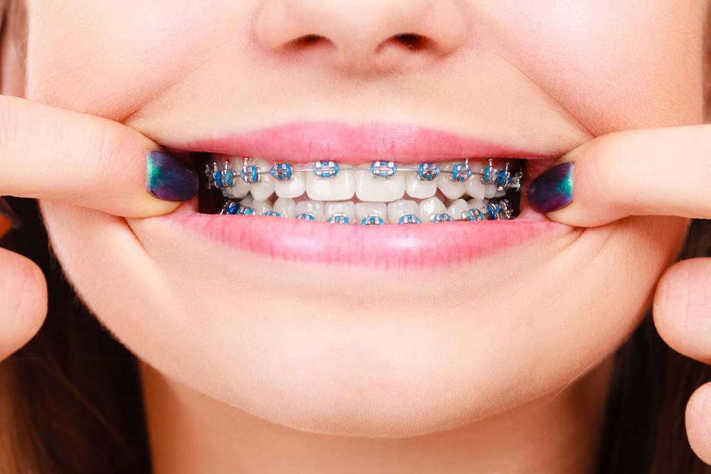 Elige el sistema de ortodoncia que mejor se adapta a tu economía sin renunciar a la comodidad y a la eficacia